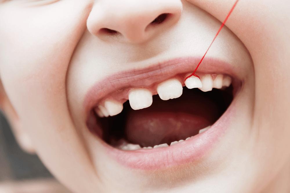 Entendendo tudo sobre a dentição de leite 3