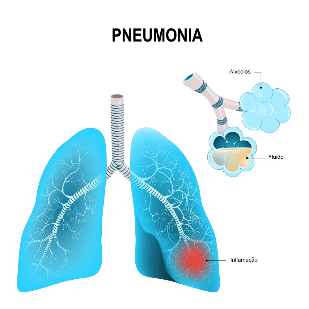 Pneumonia na infância: É preciso conhecer para combater! 2