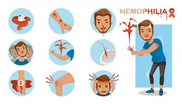 Hemofilia: o que é e o que afeta? 7