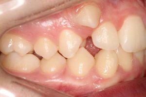 dente encavalado (1)